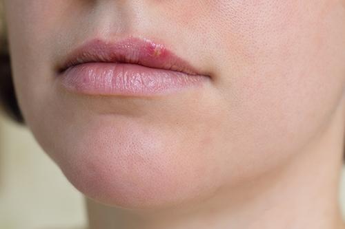 herpes-oral.png#asset:17582
